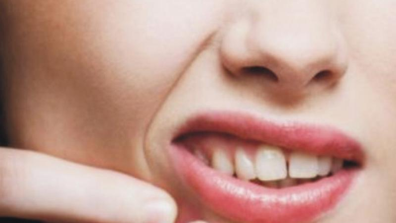 Scuame si roseata? E posibil sa ai acnee rozacee!