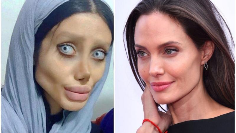 Imaginile şocante au făcut înconjurul lumii iar acum recunoaşte că a minţit. Cum arată, de fapt, tânăra din Iran care vrea să semene cu Angelina Jolie: