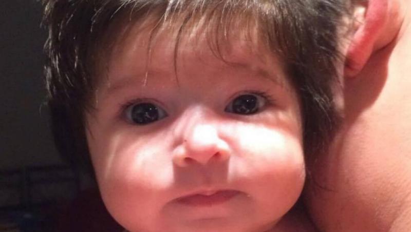 La ecografie, medicii au văzut ceva în jurul capului bebeluşului. Cum arată la câteva luni de la naştere micuţa. Este unică în lume!
