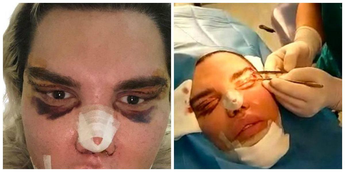 Fotografia care face înconjurul internetului. Un bărbat a fost operat de urgență și a crezut că totul va fi bine. La puțin timp și-a dat seama de efect!