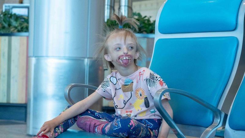 """""""Mami, vreau să zâmbesc și eu!"""" Povestea tulburătoare a fetiței de șase ani care s-a născut fără jumătate din față!"""