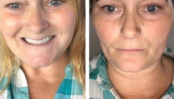 """O femeie a vrut să-și tatueze sprâncenele și a devenit """"vedetă"""" peste noapte! Tot internetul râde de ea"""