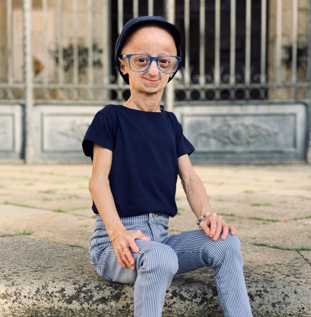 Copilul care s-a născut deja bătrân. Arată de 150 de ani, deși are doar 22. Claudia Amaral face senzație pe TikTok