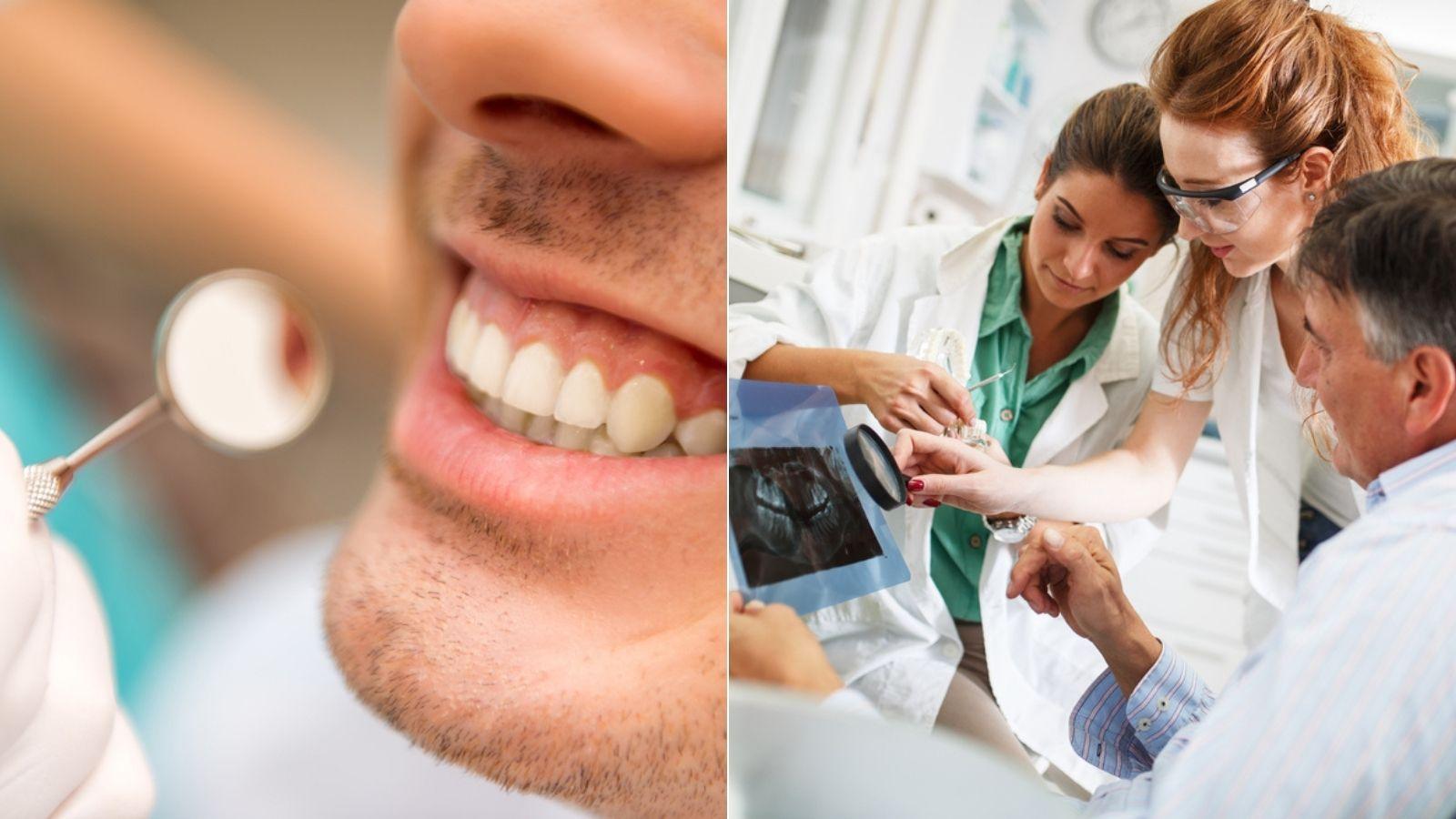 Tânărul care avea 82 de dinți. Medicilor nu le-a venit să creadă ce au descoperit când a deschis gura