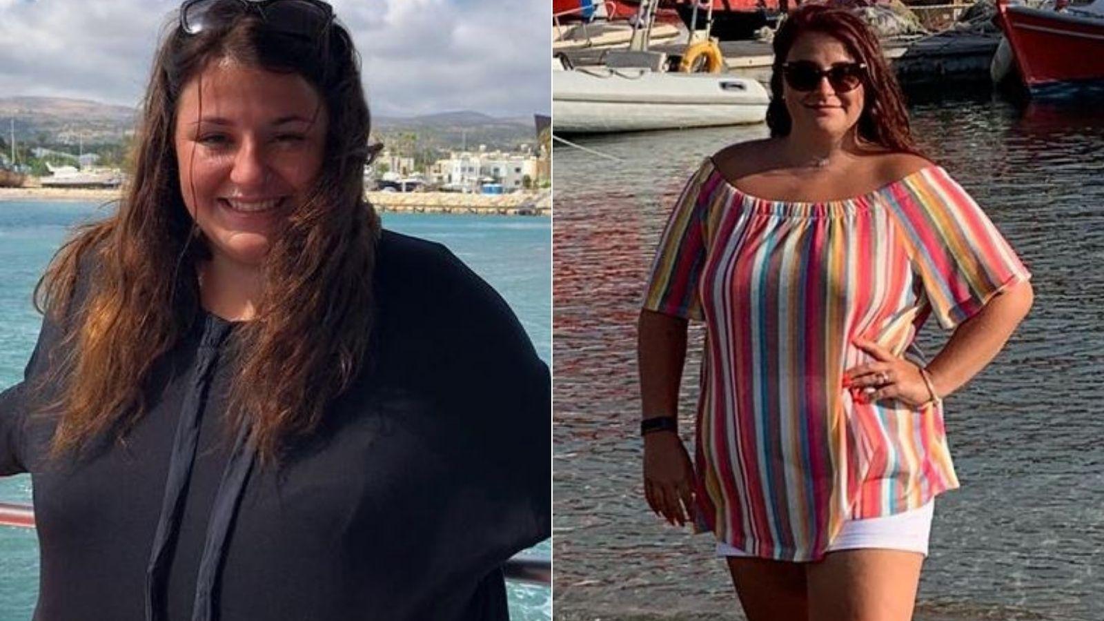 Femeia care a fost criticată pentru că era obeză a slăbit 50 kilograme. Cum arată acum și cât au costat procedurile