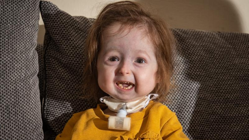 """Isla Kilpatrick-Screaton, care suferă de mutația """"Benjamin Button"""" și îmbătrânește prematur. Așezată pe o canapea gri, îmbrăcată în haine galbene"""
