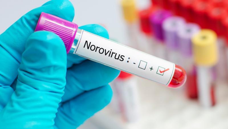 analize de sange care arata ca persoana sufera de norovirus