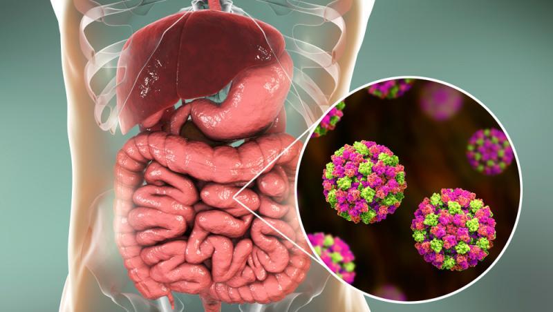 intestine infectate cu norovirus