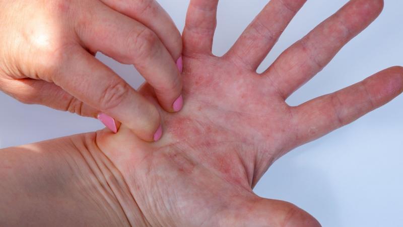 imagine cu maini ce prezintă erupții din cauza unei alergii
