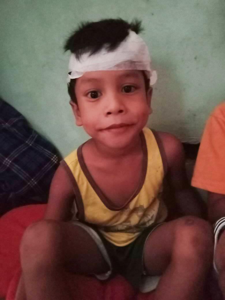 Un glonț s-a înfipt în capul unui copil de 6 ani, dar acesta a supraviețuit în mod miraculos. Ce au descoperit medicii