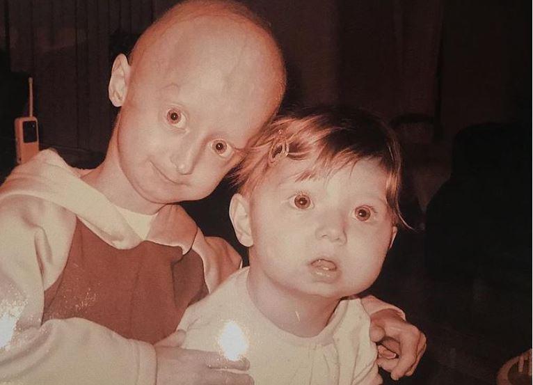 Cum arată acum Amber și Michiel Vandeweert, frații care îmbătrânesc prea repede. Cei doi suferă de Progeria