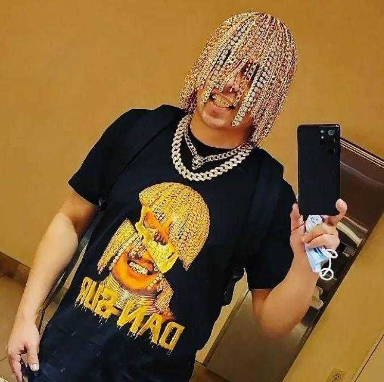 Dan Sur este primul rapper din lume care și-a făcut implant cu lanțuri de aur pe scalp în locul firelor de păr. Cum arată
