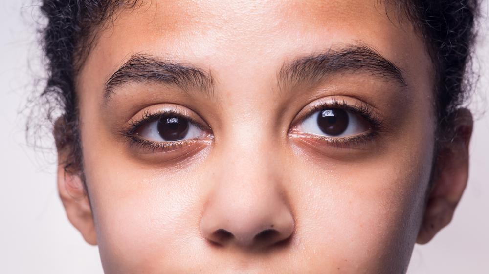 """O fetiță plânge cu """"lacrimi de piatră"""", susține familia ei. Ce spun medicii despre fenomenul bizar"""