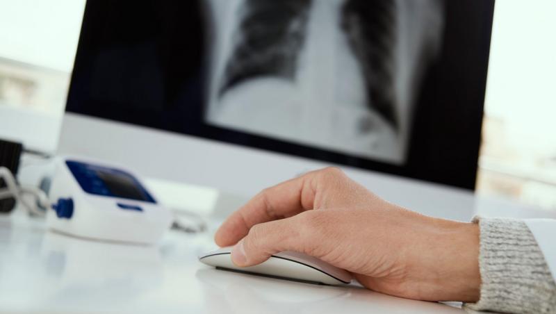 imagine cu o ecografie si mana unui doctor pe un birou