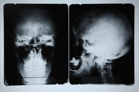 Radiografie craniana a lui Albert Einstein, vanduta cu peste 28.000 de euro