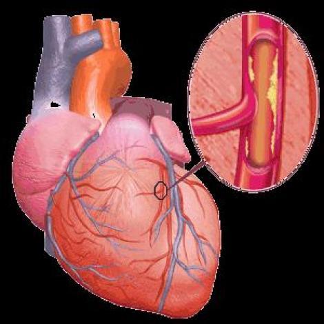Colesterolul este determinat de un hormon din creier