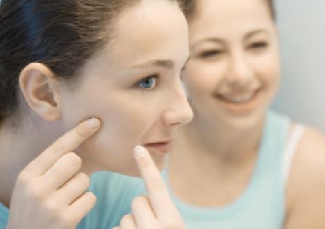 Bolile verii : acneea rozaceea si conjunctivita