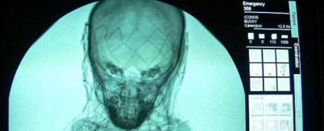 Misterul unei mumii, dezvaluit de o radiografie