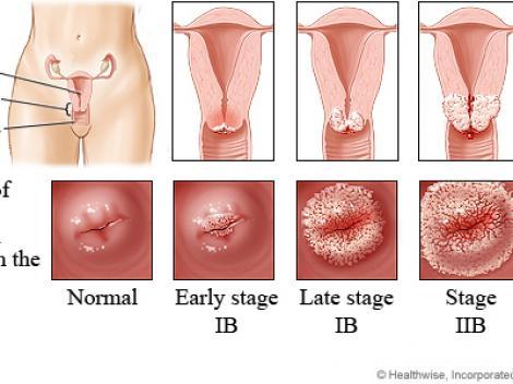 VIDEO! Suntem pe locul 1 in Europa la mortalitatea cauzata de cancerul de col uterin