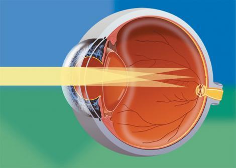 VIDEO! Afla ce este si cum poate fi tratat astigmatismul!