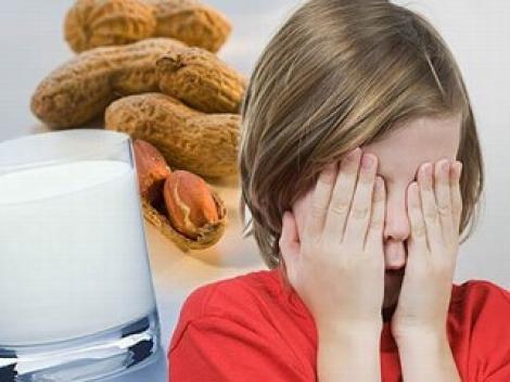Copiii alergici la mancare se simt nesiguri la scoala