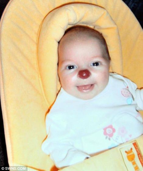 """Marea Britanie: O fetita s-a nascut cu sindromul """"nas de clovn"""""""