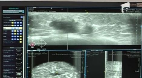 VIDEO! Sanatate: Cancerul va fi diagnosticat in 2 minute