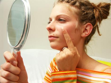 Cele mai frecvente cauze ale aparitiei acneei