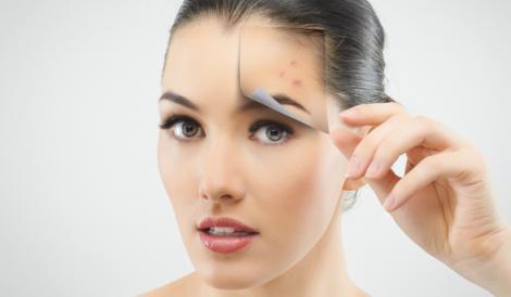 Invenţia care ar putea ajuta mii de oameni! Un nou tratament împotriva acneei are rezultate spectaculoase