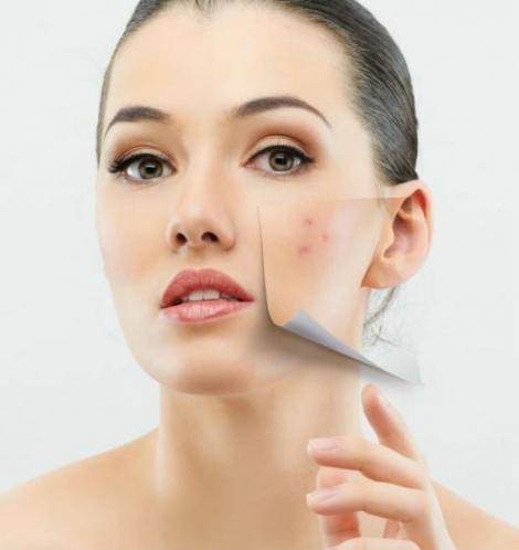 Ai acnee sau coşuri şi nu ştii ce să mai faci ca să scapi de ele? Află chiar acum o soluţie mai simplă decât ai crede