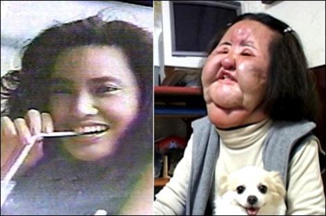 Galerie FOTO: Priveşte dacă poţi! TOP 5 cele mai nereuşite operaţii estetice