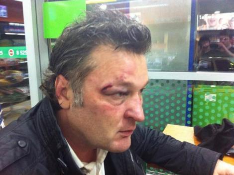 FOTO-VIDEO: L-a jignit pe Putin, apoi a fost răpit, jefuit şi bătut o zi întreagă!