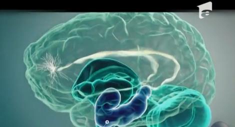 Viitorul ne aduce implanturi în creier pentru eficiență la locul de muncă