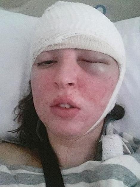 Caz incredibil! Au vindecat-o de cea mai rară formă de epilepsie