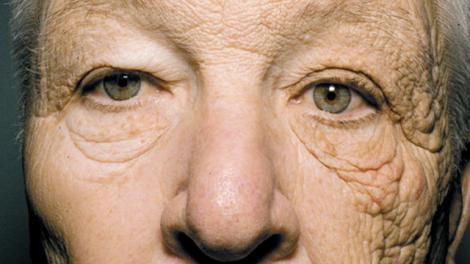 Imagine șocantă! L-a bătut soarele, timp de 20 de ani, doar pe partea stângă. Cum arată acum pielea de pe jumătate din față