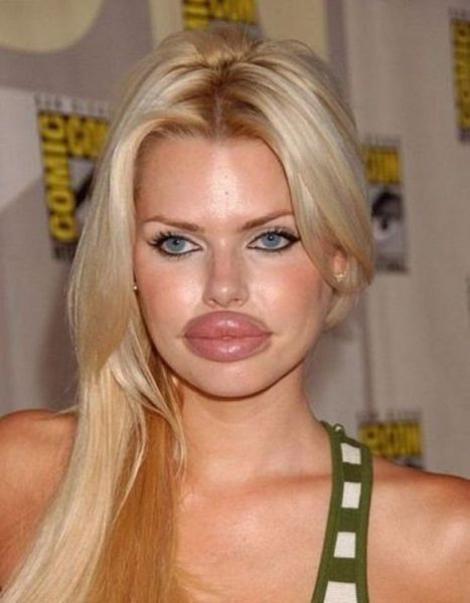 Galerie FOTO! Buzele tale, două... BALOANE!!! Ce-o fi fost în capul lor atunci când și-au făcut implanturile astea HIDOASE?!
