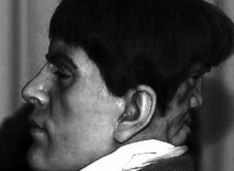 ESTE IREAL! Doar 10 oameni din istoria omenirii au avut AȘA CEVA: S-a născut cu DOUĂ FEȚE!