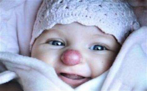 Nu, nu e o glumă! Fetița aceasta NU e ajutorul lui Moș Crăciun, doar s-a născut cu NAS DE CLOVN