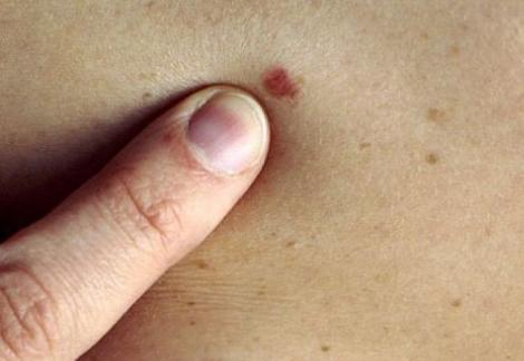 Atenție, nu neglijaţi aluniţele! Cancerul de piele face tot mai multe victime!