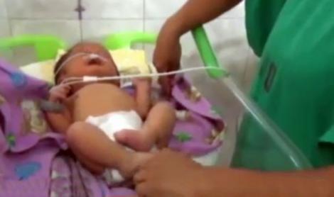 Lumea medicală de pretutindeni a fost în stare de șoc! Un bebeluș s-a născut având două nasuri!