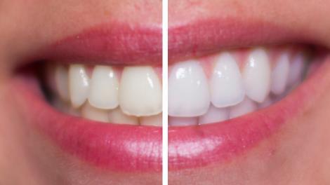 De-acum îți poți albi dinții fără a merge la stomatolog