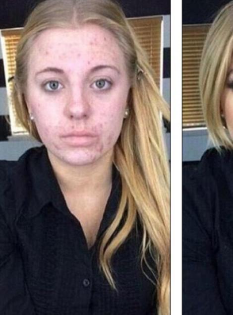 O tânără cu acnee s-a machiat și s-a transformat total, dar acest lucru a înfuriat internetul!