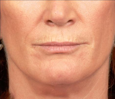 Vei rămâne uimită de rezultate! Scapă de ridurile din jurul gurii cu o cremă 100% naturală, preparată în casă