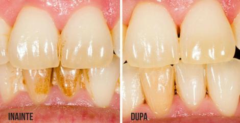 Metoda perfectă de a îndepărta tartrul de pe dinți. Fructele tari, înălbitorii perfecți!