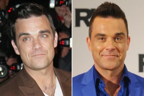 """Robbie Williams: """"Nu îmi mai pot mișca fruntea din cauza atâtor injecții cu botox!"""" Cum s-a transformat Făt-Frumos de pe scenă într-o caricatură cu fața inertă"""