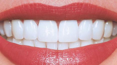 """Implant dentar?  Mai bine nu! Dinţii lipsă vor fi înlocuiți cu """"biodinţi"""", care vor creşte direct în gura pacienţilor"""