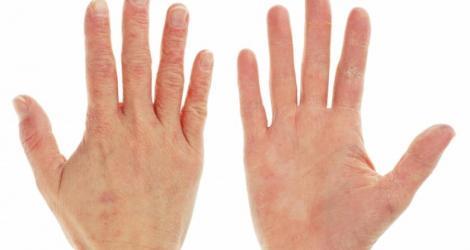 Mare ATENȚIE! Ai mâinile roșii, te mănâncă și te ustură? Organismul te atenționează că ai o serie de boli care trebuie tratate IMEDIAT