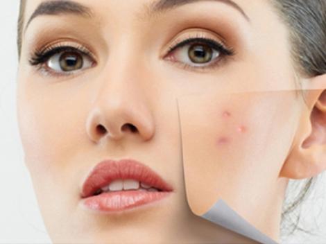 Scapă de acnee și riduri cu un tratament făcut chiar în bucătăria ta! Rezultatul este IMEDIAT