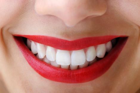 Uită de tratamente scumpe! Acestea sunt cele mai tari trucuri pentru albit dinții! Vei deveni o adevărată vedetă!