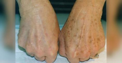 Cum să scapi RAPID de petele maronii de pe mâini, folosind un remediu natural